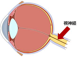 高い が 眼 圧
